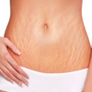 How-To-Get-Rid-Of-Stretch-Marks-Naturally-At-Home-And-Fast